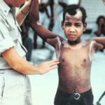child burnt by nuclear radiation