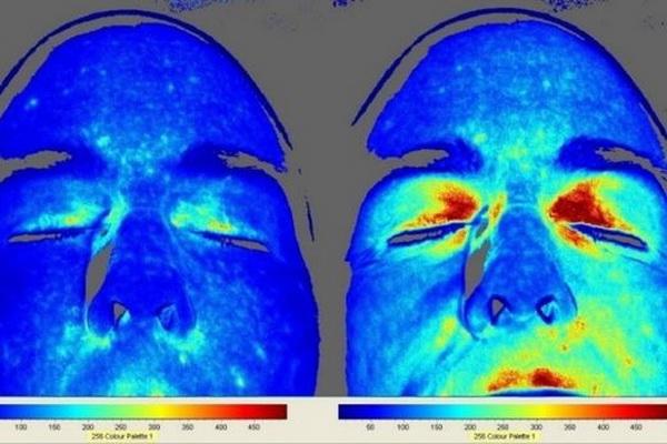 Facial Circulation