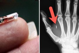 Microchip implants