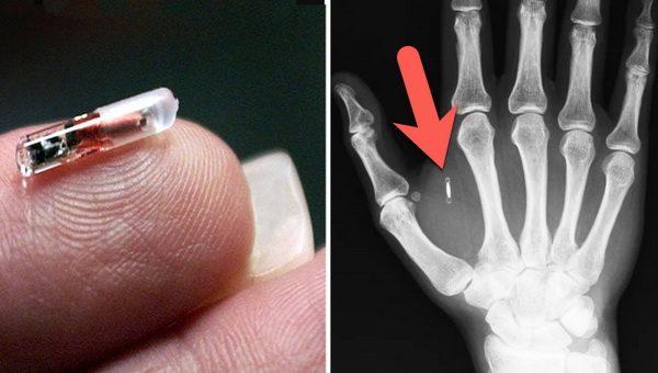 Microchip implants