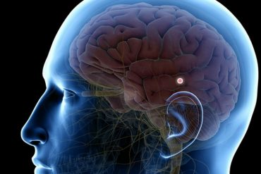 Location of pineal gland in the brain